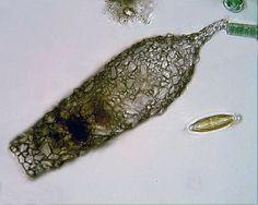 Shell of the testate amoeba Difflugia acuminata.