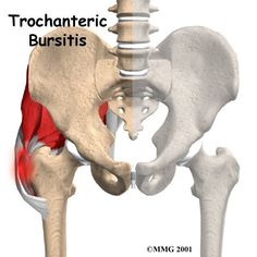 Physical Therapy in Manhattan for Trochanteric Bursitis of the Hip