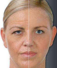 Using Essential Oils to Prevent Wrinkles - Natural anti ageing.