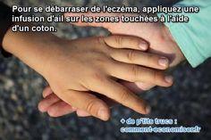 Vous cherchez un remède de grand-mère pour le soigner et le faire partir ? Heureusement, il existe un soin naturel et très simple pour le soigner. Il s'agit d'une infusion d'ail. Découvrez l'astuce ici : http://www.comment-economiser.fr/eczema-remede-naturel-ail.html?utm_content=buffer1bcdf&utm_medium=social&utm_source=pinterest.com&utm_campaign=buffer