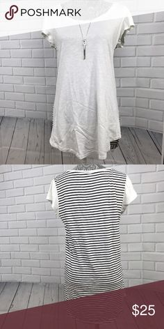 Gap Striped Back Tunic Top! Sz M Gap Striped Back Tunic Top! GAP Tops Tunics