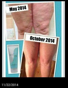 5 months using Nerium Firm!!!