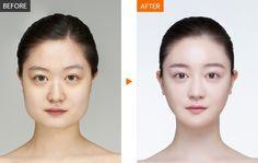 #안면윤곽 #양악성형 #윤곽수술전문병원 #윤곽수술전후 #렛미인병원 #렛미인 #KOREA #Seoul #plasticsurgery #cheekbone #ulthera #contouring #laser #gangnam #eyelid #skin #mandible #fat #korean #koreanhospital #hospital