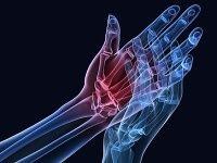 Máte problémy s kĺbmi a kosťami? Vyskúšajte ich očistu! | Topky.sk