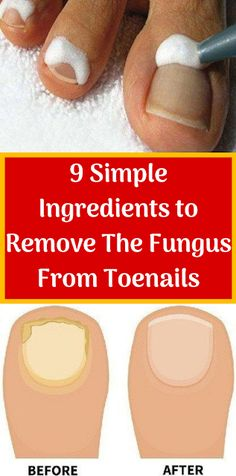 9 Simple Ingredients to Remove The Fungus From Toenails - Hair Loss Treatment Best Hair Loss Shampoo, Biotin For Hair Loss, Oil For Hair Loss, Hair Shampoo, Biotin Hair, Ingrown Toenail Treatment, Ingrown Toe Nail, Fungal Nail Treatment, Foot Fungus Treatment