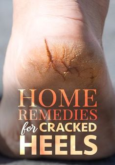 health remedies Do you suffer from dry, cracked heels even when its not summer Cracked skin is normally painful but walking on it is unbearable! Find out how to heal dry skin on your feet naturally with these home remedies for cracked heels. Foot Remedies, Cold Home Remedies, Natural Health Remedies, Herbal Remedies, Dry Skin Remedies, Pimples Remedies, Heal Cracked Heels, Cracked Skin, Leiden