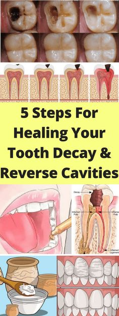Here 5 Steps For Healing Your Tooth decay & Reverse Cavities!!! - All What You Need Is Here