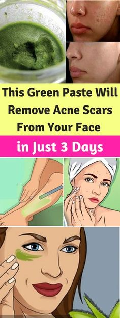 This Green Paste Will Remove Acne Scars From Your Face in Just 3 Days - seeking habit