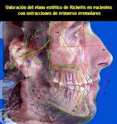 Valoración del plano estético de Ricketts en pacientes con extracciones de primeros premolares | OVI Dental