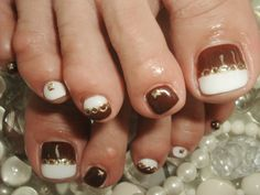 White and brown toenails