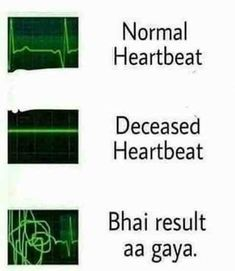 🤣🤣🤣🤣🤣even during exams. Funny Jokes In Hindi, Cute Funny Quotes, Some Funny Jokes, Crazy Funny Memes, Funny Puns, Really Funny Memes, Funny Relatable Memes, Funny Facts, Hilarious