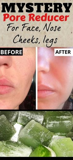 DIY Pore Reducer For Lingering Pores #largepores #reducelargepores #largeporesdiy