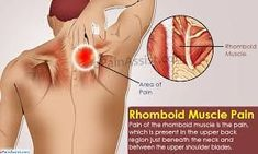 Pain of the rhomboid muscle is the pain which is present in the upper back region just beneath the neck and between the upper shoulder blades. Know its causes signs symptoms exercises stretches and prevention. Shoulder Pain Relief, Neck Pain Relief, Neck And Shoulder Pain, Shoulder Blade Stretch, Pinched Nerve In Shoulder, Sore Neck And Shoulders, Muscle Pain Relief, Stretches For Shoulder Blades, Sore Shoulder Muscles
