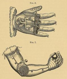 Late 16th century artificial arm and hand for the well-to-do man designed by Pare.    Orthopraxy: the Mechanical Treatment of Deformities, Debilities, and Deficiencies of the Human Frame. Henry Heather Bigg, 1877.