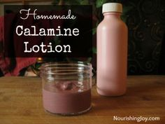 Homemade Calamine Lotion Recipe - easy recipe for relief from hives, poison ivy, chicken pox and more... #homemade #homesteading
