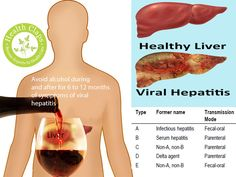 the different types of hepatitis viral disease Here's what you need to know about this condition:  of the five different types of  hepatitis, some viruses spread through contaminated food or.