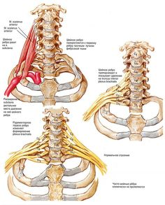 The presence of a rib on the seventh cervical vertebra greatly increases the risk of developing arm and hand pain from thoracic outlet syndrome. Sciatica Symptoms, Sciatica Pain Relief, Sciatica Exercises, Sciatica Yoga, Chronic Sciatica, Hand Therapy, Massage Therapy, Physical Therapy, Healing