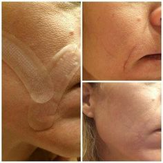 Check out these amazing before and after results for Rodan and Fields Acute Care! These strips are the equivalent of botox over night, no needle required! www.loveyourpores.com