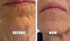 Treatment Of Wrinkles Around Mouth And Lips