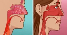 How to kill a sinus infection in 20 seconds. Few things are worse than a sinus infection. Most people have experienced symptoms of sinusitis like runny nose and facial pain. Symptoms can last for 10 days or 8 weeks. In the worst cases, they can last even Sinus Remedies, Allergy Remedies, Cold Remedies, Natural Home Remedies, Natural Healing, Herbal Remedies, Health Remedies, Runny Nose Remedies, Symptoms Of Sinusitis