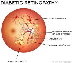 What Causes Diabetic Retinopathy Diabetic retinopathy is the most common form of diabetic eye disease, in which the light sensitive portion at the back of the Diabetic Retinopathy Treatment, Diabetic Eye Disease, Eye Anatomy, Eye Facts, Pa School, Diabetes In Children, Eyes Problems, Cure Diabetes, Diabetes Management