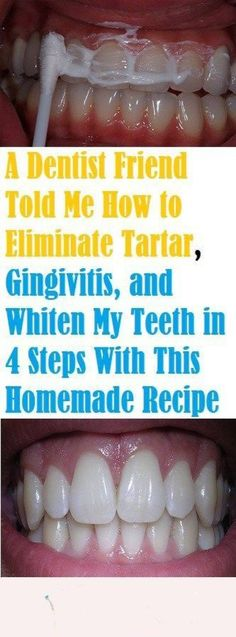 A Dentist Friend Told Me How to Eliminate Tartar, Gingivitis.- A Dentist Friend Told Me How to Eliminate Tartar, Gingivitis, and Whiten My Teeth in 4 Steps With This Homemade Recipe - Teeth Whitening Remedies, Natural Teeth Whitening, Skin Whitening, Homemade Teeth Whitening, Diy Teeth Whitening Charcoal, Teeth Whitening That Works, Natural Toothpaste, Zahn Bleaching, Beauty Hacks For Teens
