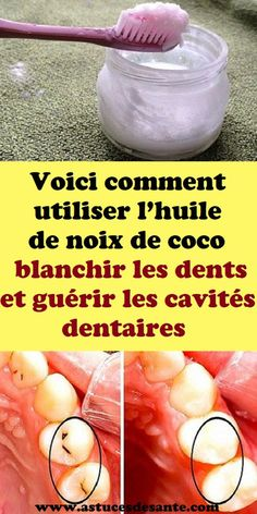 Voici comment utiliser l'huile de noix de coco blanchir les dents et guérir les cavités dentaires#huiledenoixdecoco #blanchirlesdents #cavitésdentaires #dents #remèdes Coconut Oil, Lotion, Healing, Homemade, Voici, How To Make, Beauty, Sport, Exercises