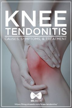 """Knee tendonitis, commonly known as the """"Jumper's Knee,"""" can be easily treated if diagnosed early. Here are a few things to help understand it better. Tendonitis Causes, Patellar Tendonitis, Bursitis Knee, Varicose Vein Removal, Varicose Veins, Warts On Face, Knee Pain Exercises, Knee Arthritis, Rheumatoid Arthritis"""