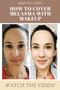 Learn the makeup tips to cover your melasma and hyperpigmentation with this quick video tutorial. How To Use Makeup, How To Fade, Natural Looks, Natural Makeup, Best Makeup Products, Diaries, Makeup Tips, Make Up