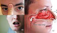Tips Sehat: Trik Mudah Hilangkan Sinusitis, Pilek, Hidung Ters...