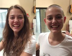 Before-after shaved head