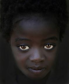 Beautifully big eyes Karo tribe girl from Ethiopia Omo valley is a survivor of ritualized infanticide (Mingi) practiced by the Karo tribe in southern Ethiopia. Picture by