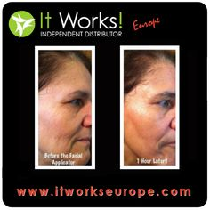 If you need some fast (45 minutes) and cheap (€10-25 per application) solution to get rid of wrinkles and softlines, try the It Works Facial Wrap!  https://itworkseurope.myitworks.com/Shop/Product/803