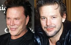 Then and now - Mickey Rouke, plastic surgery gone wrong.