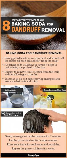 8 Easy and Effective Ways to Use Baking Soda For Dandruff Removal Loading. 8 Easy and Effective Ways to Use Baking Soda For Dandruff Removal Baking Soda For Skin, Baking Soda For Dandruff, Baking Soda Shampoo, Baking Soda Uses, How To Remove Dandruff, Getting Rid Of Dandruff, Shampoo For Curly Hair, Natural Shampoo, Natural Hair