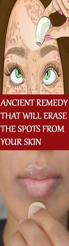 DISCOVER THE ANCIENT REMEDY THAT WILL ERASE THE SPOTS FROM YOUR SKIN LIKE WITH A RUBBER! GET THE PERFECT SKIN THAT YOU ALWAYS WANTED!