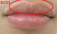 4 naturalne sposoby, żeby pozbyć się otwartych porów z twarzy! Skóra znów będzie nieskazitelna!