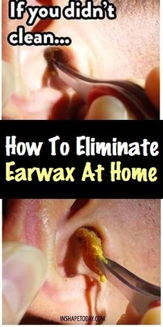 Earwax is a substance which is naturally found in the inner ear. This substance protects the ear from bacteria and other harmful organisms. Also, earwax is a natural lubricant for the whole ear and… Cleaning Your Ears, Ear Cleaning, Health Remedies, Home Remedies, Natural Remedies, Earache Remedies, Natural Treatments, Health Benefits, Health Tips