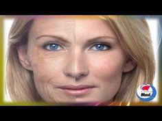 Remedios caseros para las arrugas y lineas de expresion - http://solucionparaelacne.org/blog/remedios-caseros-para-las-arrugas-y-lineas-de-expresion/