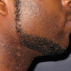 Infected Ingrown Hair On Legs