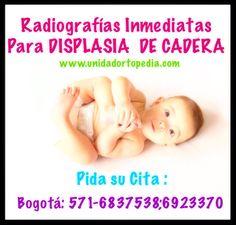 Radiografías especializadas en Niños con sospecha de Displasia de Cadera. Unidad Especializada en Ortopedia y Traumatologia en Bogota - Colombia PBX: 6923370 www.unidadortopedia.com