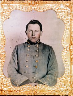 """LT. OWEN JONES """"JAKE' PATE 3RD NCST & 67TH NCST.  He was wounded at Antietam left neck/face, by a  spherical ball.  If you flip the reverse negative ambro and he has a fresh wound scar left side lower face. The wound was only a couple of months old when he was promoted 2nd LT. in January 1863."""