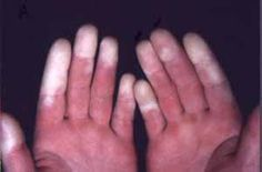 Picture of a Reynaud's phenomenon - #Injury