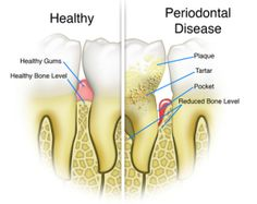 Dental cleaning, checkups, and gum disease treatment is important to prevent gingivitis, or periodontal disease. Dental checkups and dental cleanings. Gum Health, Oral Health, Dental Health, Dental Care, Teeth Health, Health Guru, Health Trends, Health And Wellness, Health Fitness