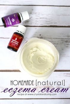 Psoriasis Diet - hand made eczema cream, I would leave out the essential oil as essential oils are notorious for increasing inflammation with eczema. Young Living Eczema, Young Living Oils, Young Living Essential Oils, Creme, Psoriasis On Hands, Psoriasis Arthritis, Psoriasis Scalp, Psoriasis Cream, Beleza
