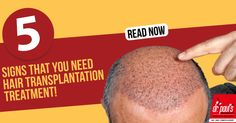Every strand of hair seems so precious at the time.The trending growth in the number of people going for hair transplantation has increased in the last 10 decades.To know the reasons why people go for hair transplantation - Read http://www.drpaulsonline.com/blog/5-reasons-for-you-to-go-for-hair-transplantation/ #haircare #hairtransplant #beauty