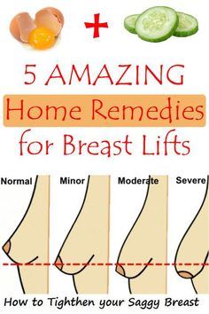 5 Amazing Home Remedies for Breast Lifts