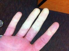 Maladie de Raynaud : Voici un remède de Grand-Mère qui aide énormémentnoté 3.7 - 58 votes Lorsque les jours sont plus froids, ceux qui souffrent de la maladie de Raynaud s'attendent généralement à quelques surprises désagréables… En effet, à cause d'une mauvaise circulation sanguine, les zones qui se trouvent aux extrémités du corps (doigts, orteils, … More