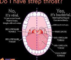 Pain throat chest pain