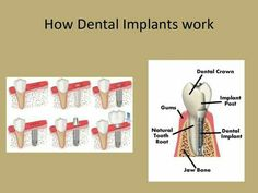 Local dentist in Lafayette, Louisiana at River Oak Dental offers family, general & cosmetic dentistry procedures. Implant Dentist, Teeth Implants, Dental Hygienist, Cosmetic Dentistry Procedures, Dental Procedures, Single Tooth Implant, Dental Bridge Cost, Dentist Day, Tooth Replacement